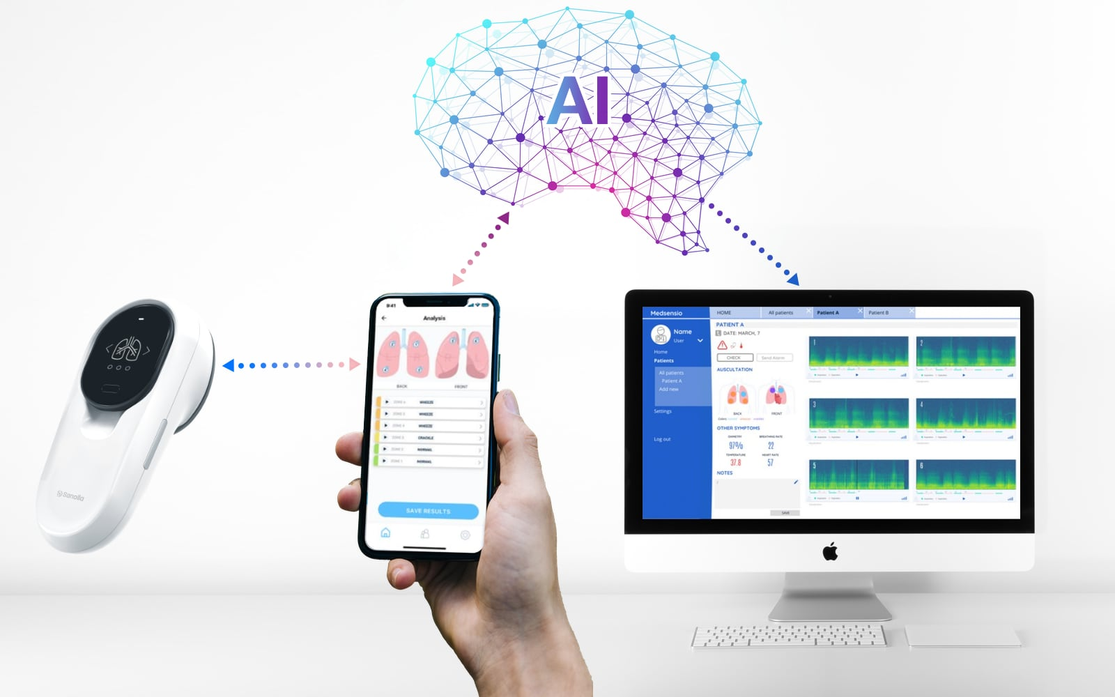 PyXy with smartphone App and Web-interface and cloud-based AI